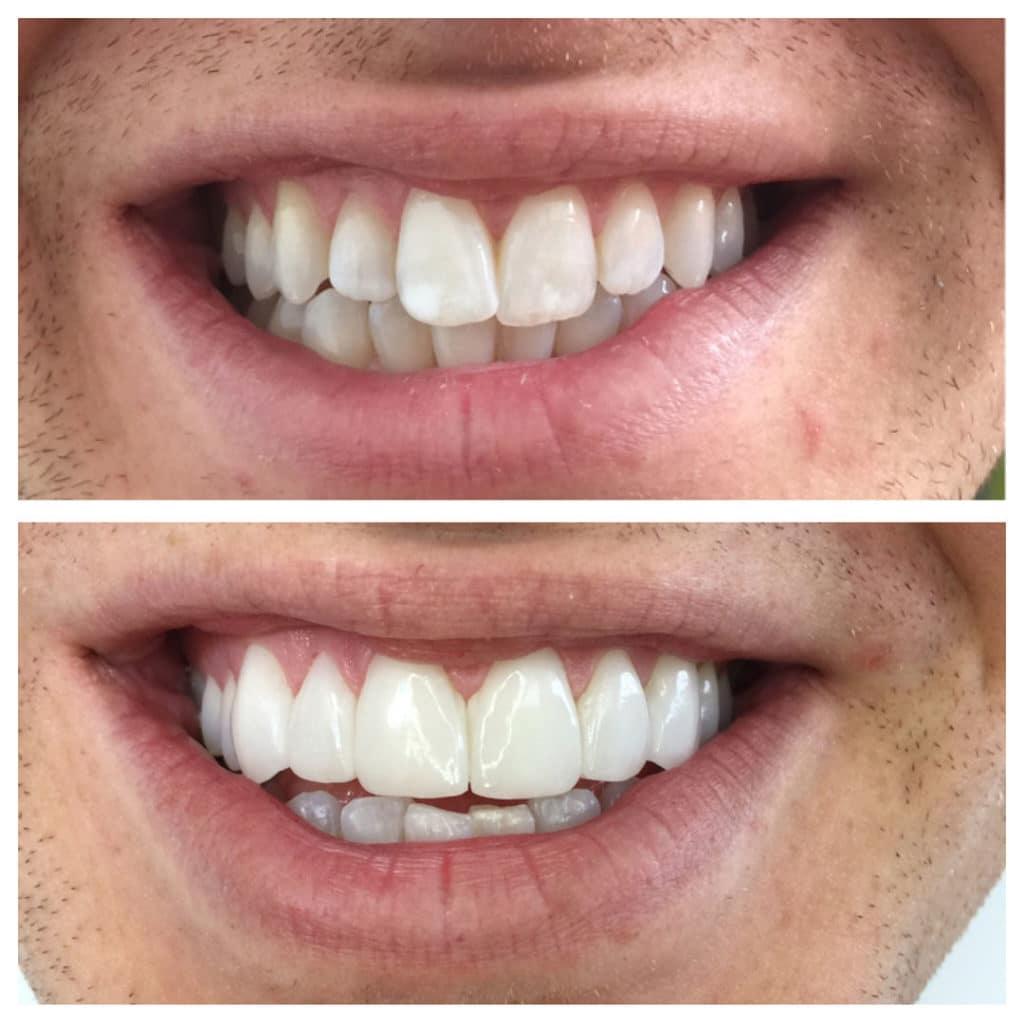 Smile Transformation