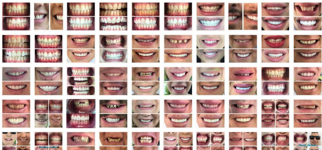 Smile transformation collection