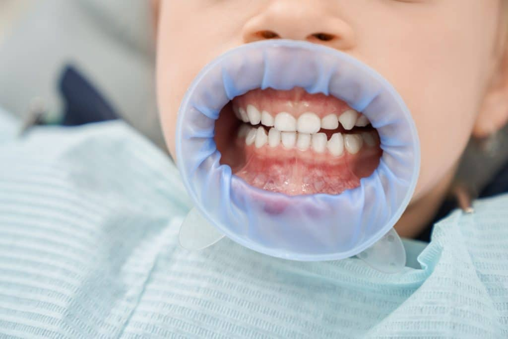 Teeth of patient after whitening procedure in dental office
