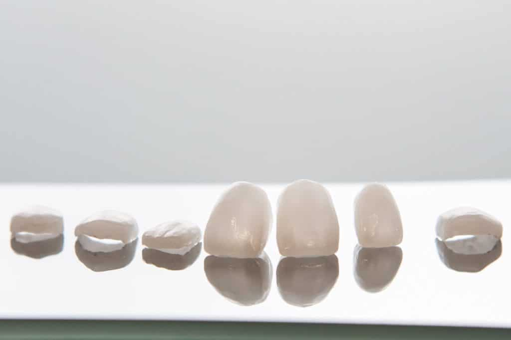 ceramic veneers