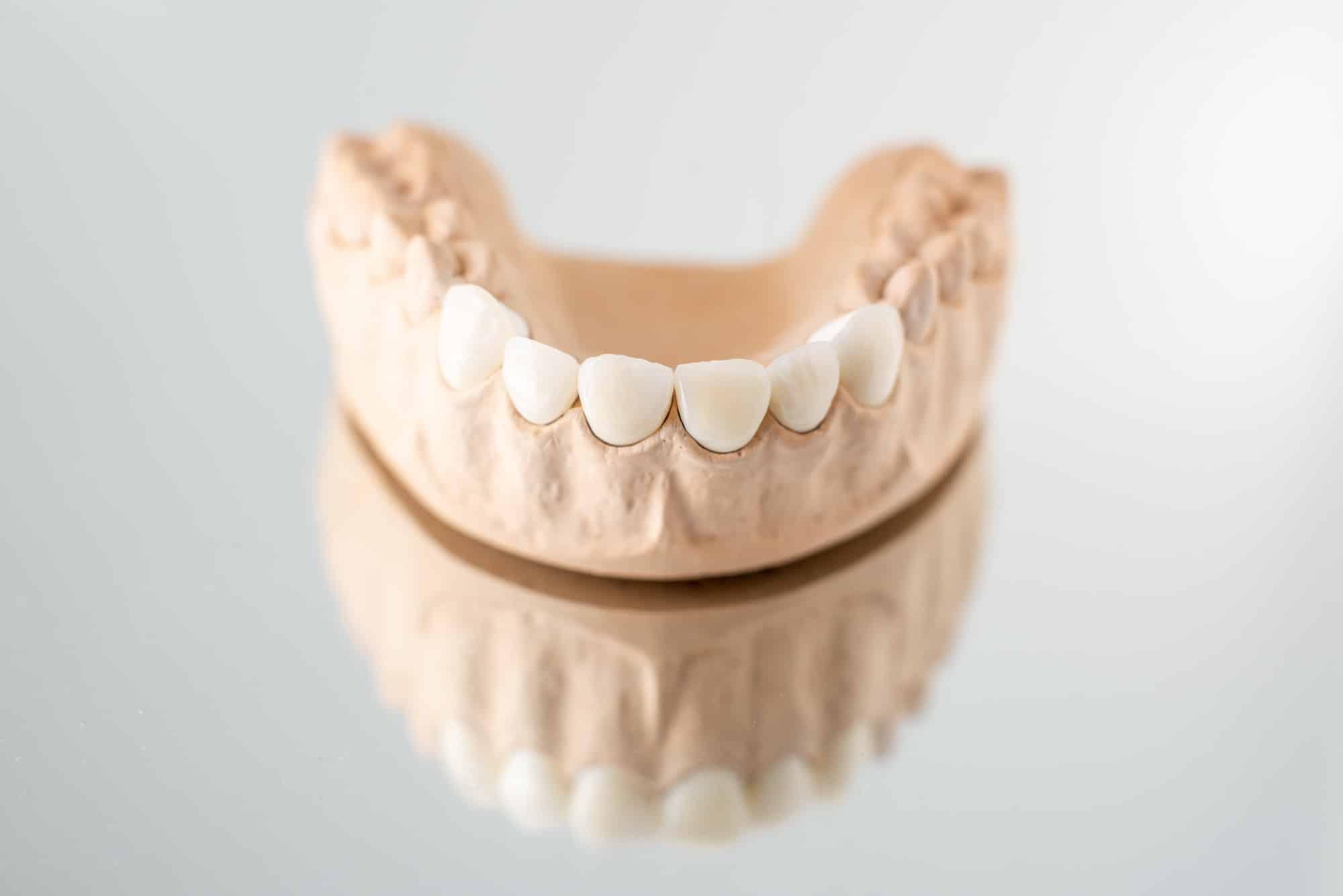 Model of artificial jaw with veneers